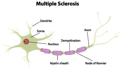 your-guide-to-multiple-sclerosis-and-life-insurance